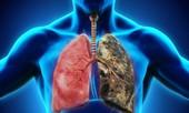 Cảnh báo 5 loại ung thư nguy hiểm có tính di truyền qua nhiều đời