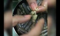 Kinh hoàng giòi nằm trong ruột ốc móng tay