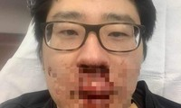 Ông Peng Wang sau khi bị tấn công. (Ảnh: FB)