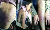 Những vết thương thâm tím, rỉ máu trên người cô bé 12 tuổi được cho bị chính mẹ ruột đánh đập