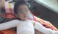 Ghép da 3 lần, bệnh nhi 5 tuổi bị bỏng nặng toàn thân được cứu sống
