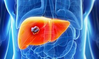 Việt Nam có tỉ lệ tử vong do ung thư gan cao nhất thế giới