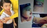 vết thương trên tay bé T. nghi bị bạo hành
