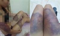 Các vết bầm tím khắp người chị Y do bị đánh đập tàn nhẫn. Ảnh: VietNamNet