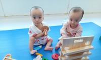 Dự kiến trong 2 tháng tới, cặp sonh Nhi có thể đứng vững và tập đi (ảnh:BVCC)