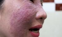 Làn da nổi đỏ từng mảng khi làm đẹp cấp tốc
