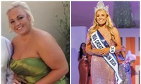 Cô gái từng nặng tới 108 kg, bị bạn trai 'đá' vì quá béo đăng quang Hoa hậu Anh