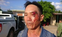 Ông Hôm bị đánh trọng thương ngay sau khi cung cấp thông tin cho báo chí