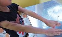 Mở lớp học trái phép, cô giáo đánh bầm tím học sinh
