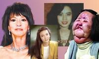 Những 'thảm họa dao kéo' của showbiz châu Á