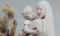 Diện mạo khác lạ của hai chị em người Kazakhstan bị bạch tạng gây 'sốt'