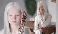 Sửng sốt với vẻ đẹp siêu thực của cô bé bạch tạng có 2 màu mắt cực hiếm