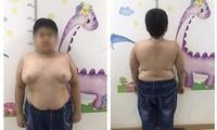 Bé trai 13 tuổi tăng cân mất kiểm soát sau khi lạm dụng thuốc corticoid Ảnh: T.Hà