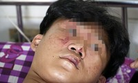 Em L.V.K là HS lớp 11 bị hành hung phải nằm viện điều trị. Ảnh: VietNamNet