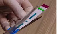 Chia đôi que thử HIV, viêm gan B: Có thể bỏ sót nhiều trường hợp mắc bệnh
