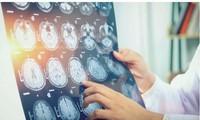 Các chuyên gia đã chụp bộ náo các bệnh nhân căn bệnh bí ẩn này để tìm nguyên nhân.