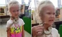 Chơi với rắn trong sở thú an toàn ở Nga, cô bé 5 tuổi bất ngờ bị rắn cắn vào mặt