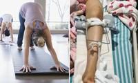 """Cố """"giúp"""" tập động tác thật chuẩn, giáo viên yoga ở Trung Quốc làm gãy xương đùi học viên"""