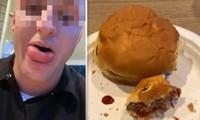 Thanh niên xui xẻo đang ăn bánh thì bị ong đốt vào lưỡi, sưng phồng không ngậm được miệng