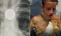 """Cô bé 8 tuổi nhập viện khẩn cấp, suýt mất mạng vì bắt chước trò """"ảo thuật"""" trên TikTok"""