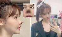 Nữ diễn viên Trung Quốc bị hoại tử đầu mũi sau phẫu thuật thẩm mỹ, lên tiếng cảnh báo mọi người