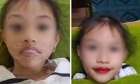 """Tranh cãi vụ bé gái 5 tuổi xăm môi, phụ huynh khẳng định: """"Từ giờ không phải đánh son""""?"""