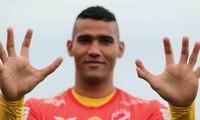 Thủ môn Brazil sở hữu bàn tay lạ kỳ có... 6 ngón