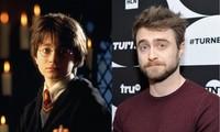 """Daniel Radcliffe tiết lộ phản ứng bi hài của fan khi biết """"Harry Potter"""" đã hơn 30 tuổi"""