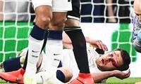 Jan Vertonghen chấn thương sau pha va chạm với đồng đội.