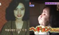 'Choáng váng' trước diện mạo kinh hãi của nữ ca sĩ Hàn từng tự bơm dầu ăn vào mặt