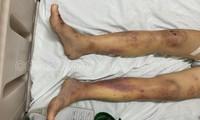 Khởi tố chủ quán cà phê kích dục tra tấn nhân viên đến nhập viện