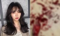 """Mina (AOA) đăng ảnh cổ tay đầy máu, khẳng định: """"Các người chẳng biết gì về tôi cả"""""""