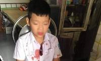 Nhà trường nói gì vụ người đàn ông đấm hộc máu mồm học sinh lớp 1