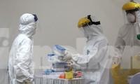 Chuẩn bị nguồn lực xét nghiệm SARS-CoV-2 tại chỗ