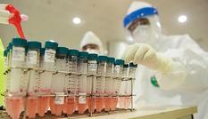 Hai phương pháp xét nghiệm nCoV khác nhau thế nào