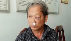 Luật sư lên tiếng vụ phóng viên VTV bị đánh dã man