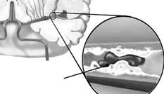 Hoạt huyết hóa ứ, liệu pháp hữu hiệu phòng & điều trị thiểu năng tuần hoàn não