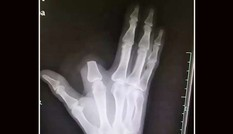 Người đàn ông Trung Quốc chặt ngón tay sau khi bị rắn cắn