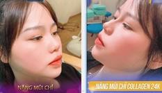Bạn gái Quang Hải lên tiếng khi dân mạng truyền nhau ảnh cô nàng đi nâng mũi và sửa mặt