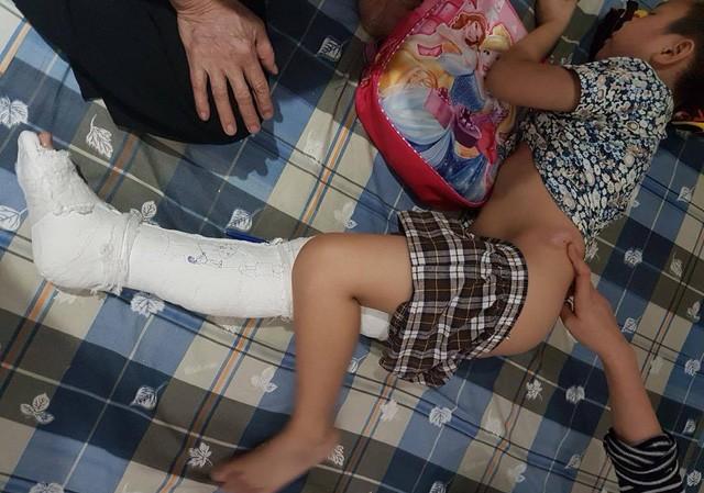 Tai nạn trong Trường tiểu học Nam Trung Yên khiến cháu Kiên bị gãy xương đùi
