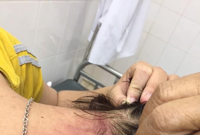 Nhiều bệnh nhân thành nạn nhân của kiến ba khoang... khi nằm viện