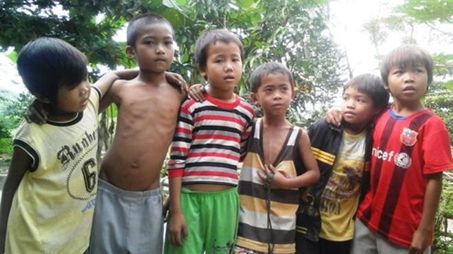 Cậu bé Hồ Kiểng (9 tuổi, thứ ba từ phải sang) chỉ vào ngực mình  cho biết đó là vết mổ tim mới được thực hiện cách đây vài tháng. Theo cán bộ xã Hương Liên thì bố mẹ Kiểng là anh em họ hàng. Ảnh: Đức Hùng