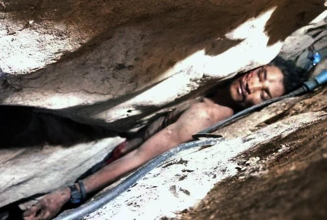 Một người đàn ông Campuchia bị mắc kẹt giữa các tảng đá. Ảnh: AP