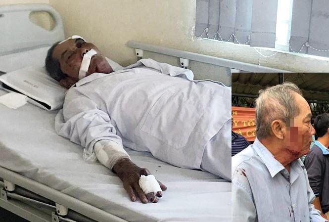 Ông Lâm bị đánh đang được điều trị trong bệnh viện.