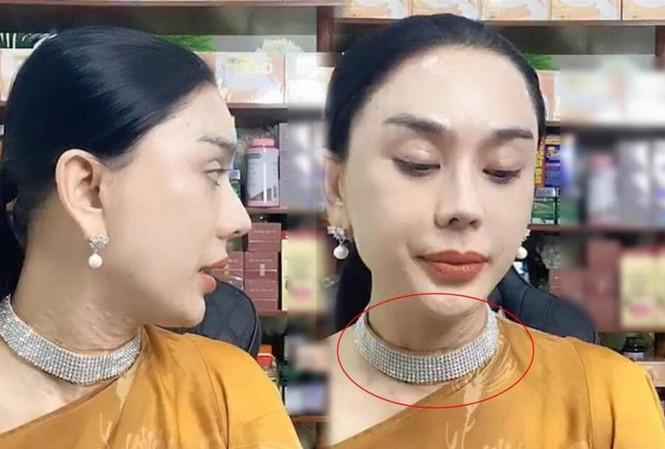 Showbiz 21/1: Lâm Khánh Chi tái xuất sau khi lộ làn da nhăn nheo, sần sùi