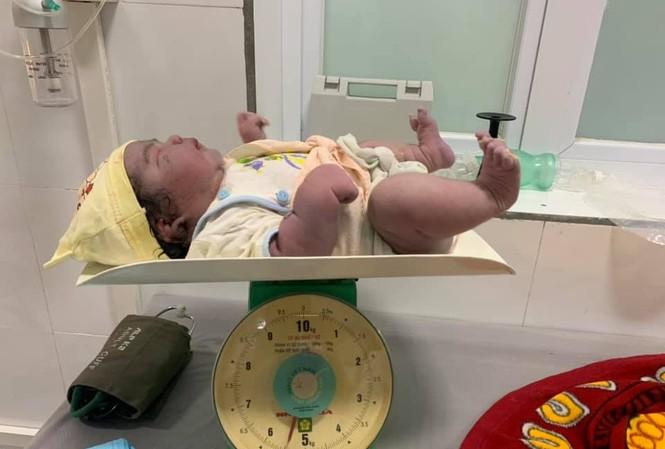 Kỳ tích sản phụ sinh thường bé gái nặng 5,5kg tại huyện miền núi Nghệ An