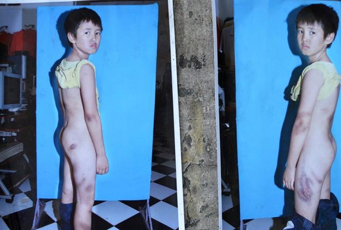 Những vết thương trên cở thể cháu Anh sau khi bị đánh được người dân căm phẫn chụp lại dán khắp nơi
