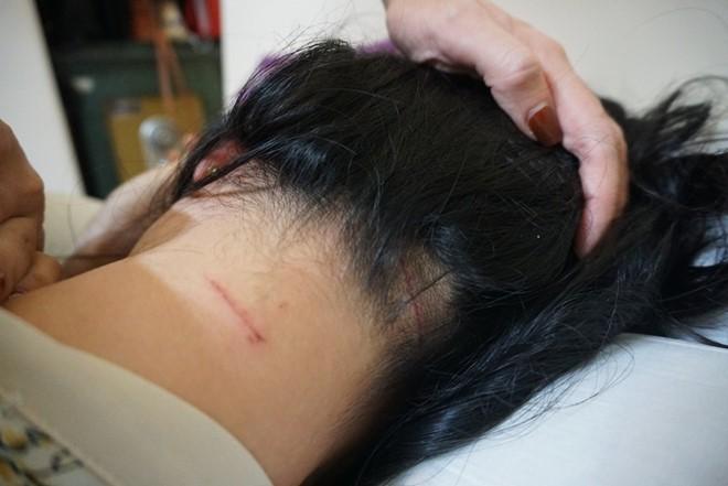 Chị Trang được đưa đi giám định với tỷ lệ thương tật 12%.