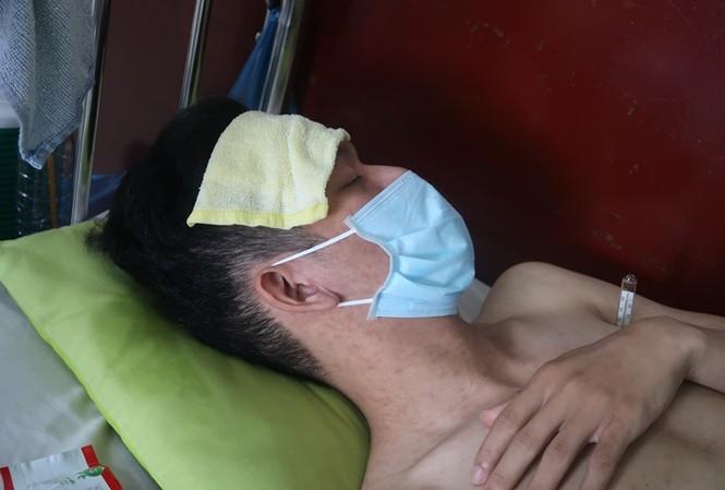 Sởi bùng phát tại TPHCM: Người lớn, trẻ nhỏ ùn ùn nhập viện