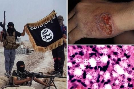 Cận cảnh những vết lở loét của binh lính IS. Ảnh: The Sun